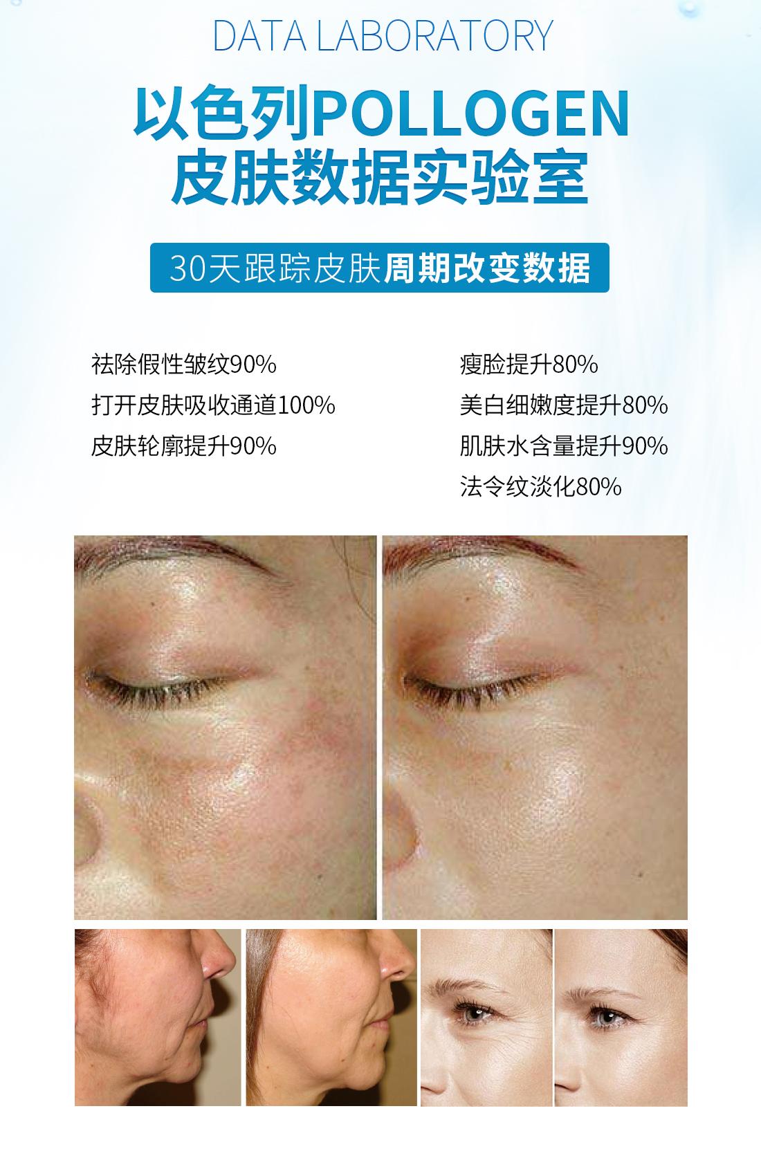 觅韵肤网维波丝力素以色列POLLOGEN皮肤数据实验室,30天跟踪皮肤周期改变数据